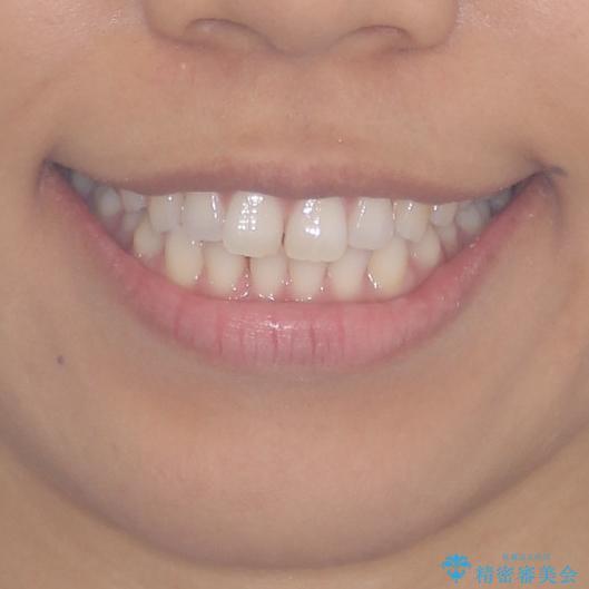 受け口傾向の前歯 すきっ歯の改善の治療前(顔貌)
