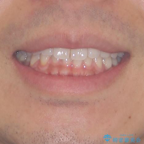 細かい隙間にものがはさまる インビザラインによる矯正治療の治療前(顔貌)