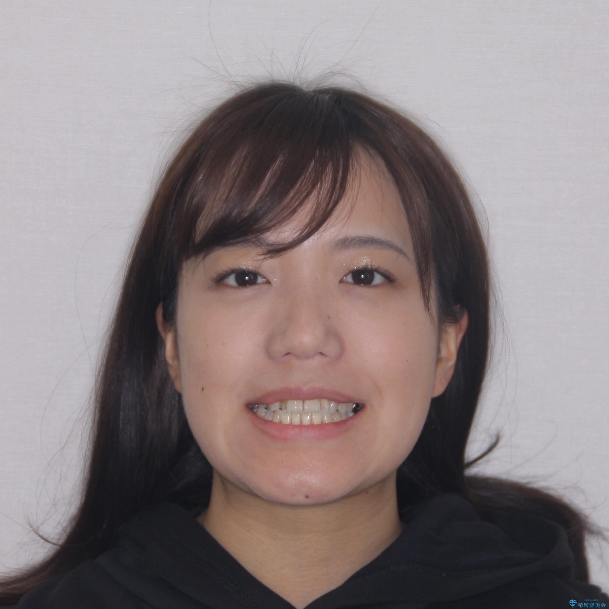 【モニター】幅の狭い上顎歯列 骨幅を拡大する矯正治療の治療前(顔貌)