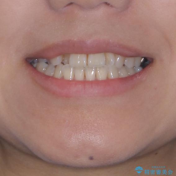 幅の狭い上顎歯列 骨幅を拡大する矯正治療の治療前(顔貌)