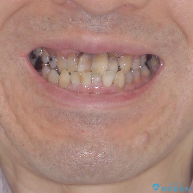 上顎の狭窄歯列 インビザラインによる拡大矯正の治療前(顔貌)