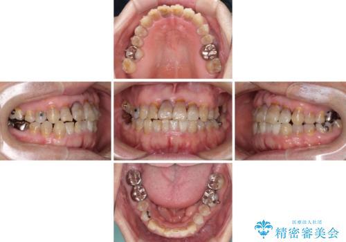 上顎の狭窄歯列 インビザラインによる拡大矯正の治療中