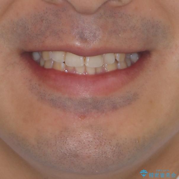 ディープバイトと叢生を解消 インビザライン矯正の治療前(顔貌)
