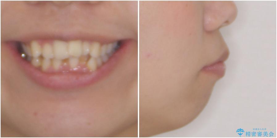 口元をスッキリと ワイヤー装置による抜歯矯正の治療前(顔貌)