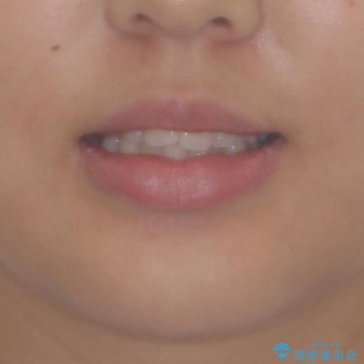 前歯のデコボコを改善 インビザライン矯正の治療前(顔貌)