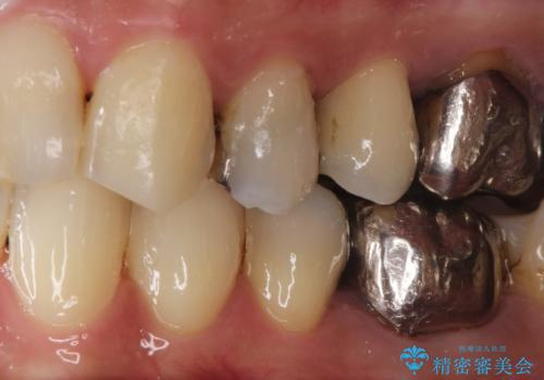 大きい虫歯 根管治療〜オールセラミッククラウンの治療前