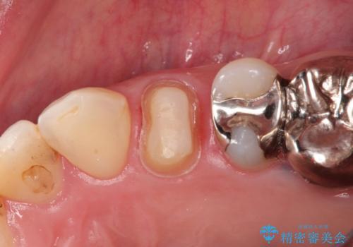大きい虫歯 根管治療〜オールセラミッククラウンの治療中