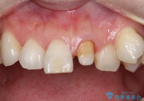 前歯を綺麗にしたい オールセラミッククラウンの治療中