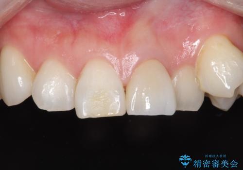 前歯を綺麗にしたい オールセラミッククラウンの治療後