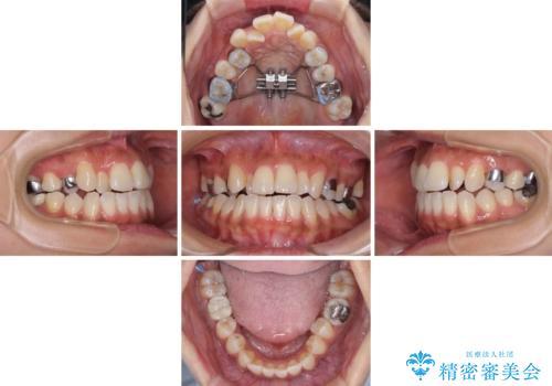 幅の狭い上顎歯列 骨幅を拡大する矯正治療の治療中
