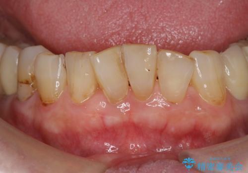 [MTMを行い歯の神経を保存] 歯周補綴ブリッジの治療前