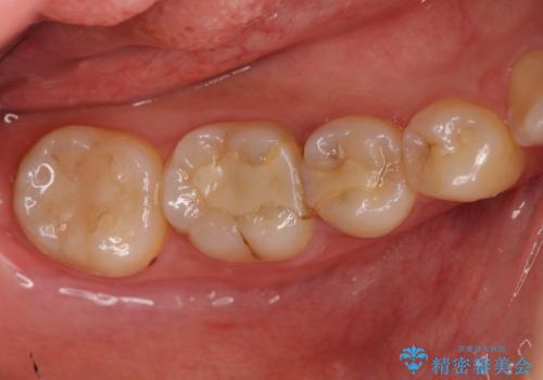 コンポジットレジン修復下で再発する虫歯の治療前