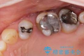 歯周病 ブリッジ補綴の治療前