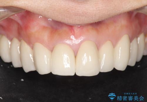 [ 前歯の見た目をよくしたい ] 前歯セラミック治療の治療後