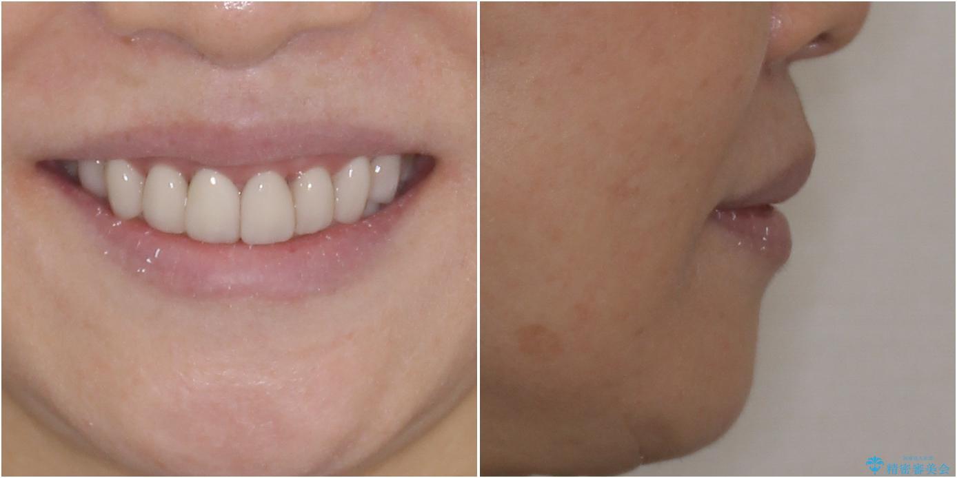 出っ歯を改善した後に真っ白な歯に 矯正歯科治療と審美歯科治療の治療後(顔貌)
