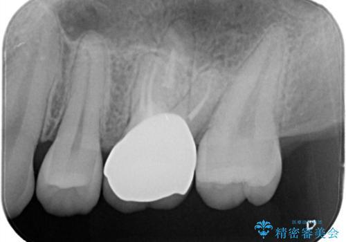 大きい虫歯 根管治療〜オールセラミッククラウンの治療後