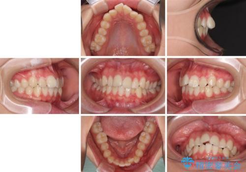 前歯のデコボコを改善 インビザライン矯正の治療前