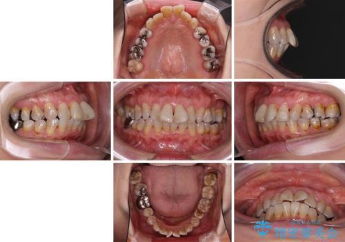 出っ歯を改善した後に真っ白な歯に 矯正歯科治療と審美歯科治療の治療前
