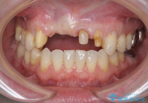 前歯が折れた 前歯部審美セラミックブリッジ治療の治療中