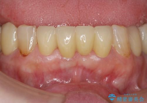 [MTMを行い歯の神経を保存] 歯周補綴ブリッジの治療後