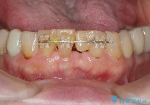 [MTMを行い歯の神経を保存] 歯周補綴ブリッジの治療中