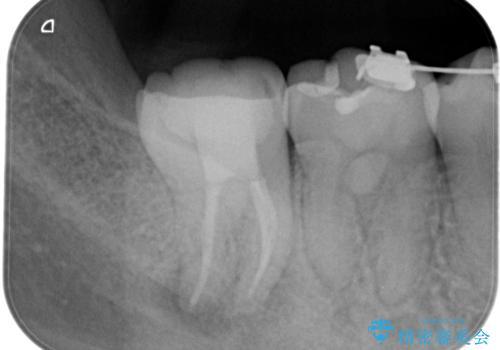 奥の歯茎にニキビみたいなものができた!の治療後