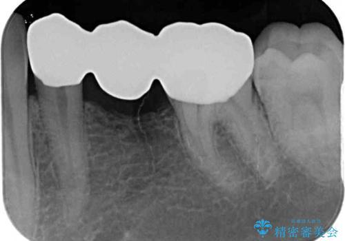 外れてしまった銀歯の詰め物 オールセラミックブリッジにて審美補綴の治療後