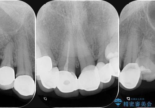[ 前歯の見た目をよくしたい ] 前歯セラミック治療の治療前