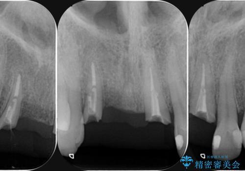 前歯が折れた 前歯部審美セラミックブリッジ治療の治療前