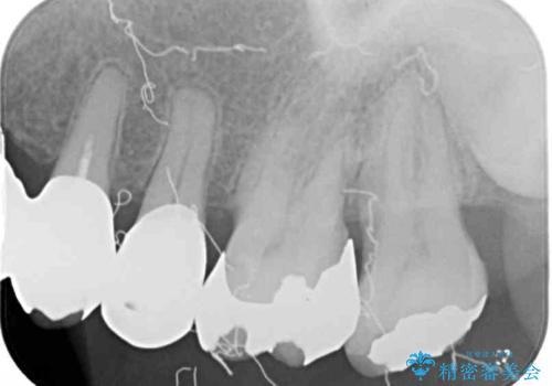 歯肉が腫れて出血する 奥歯の歯周病治療の治療前
