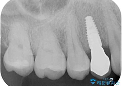深い虫歯の歯を抜歯 目立つ小臼歯のインプラント治療の治療後