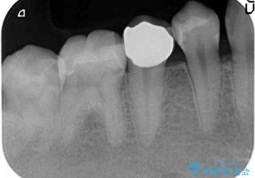 コンポジットレジン修復下で再発する虫歯の治療後