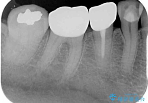 欠けてしまった奥歯 セラミッククラウンによる補綴治療の治療後