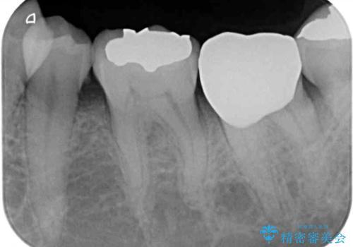 銀歯や虫歯を治したい ゴールドインレーによるむし歯治療の治療後
