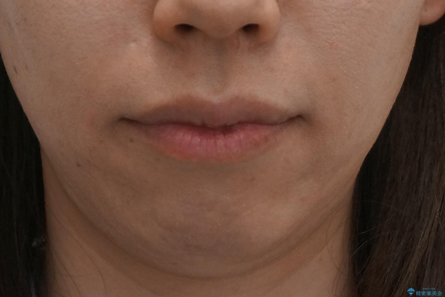 出っ歯 前歯のがたがた 口元を引っ込めたいの治療後(顔貌)