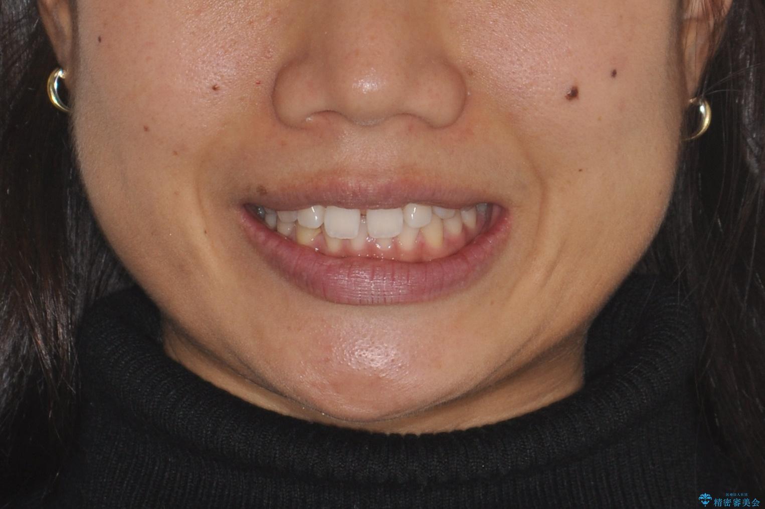 すきっ歯のインビザラインによる目立たない矯正の治療前(顔貌)