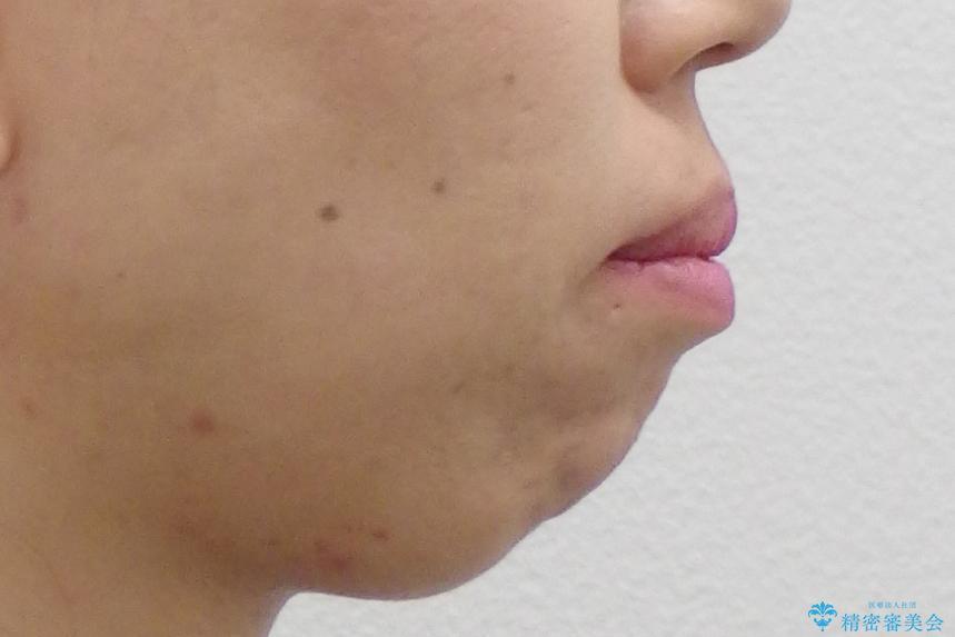 出っ歯 前歯のがたがた 口元を引っ込めたいの治療前(顔貌)