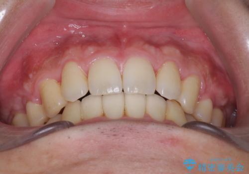 前歯のガタガタをきれいにしたい ワイヤーによる抜歯矯正で整った歯並びへの治療後