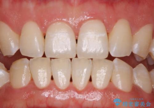 ホワイトニングせずにPMTCで明るい口元にの治療後