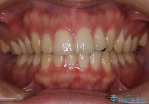 マスクの中で気になる口臭をPMTCで予防の治療前