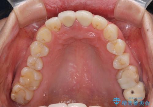 目立つ前歯の詰め物 オーダーメイドのセラミッククラウンで審美的に仕上げるの治療後