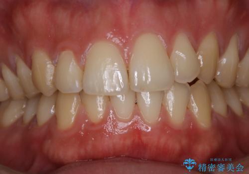 マスクの中で気になる口臭をPMTCで予防の治療後