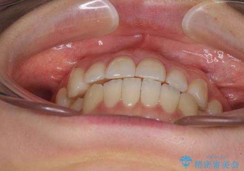 前歯のクロスバイト インビザラインによる矯正治療の治療中
