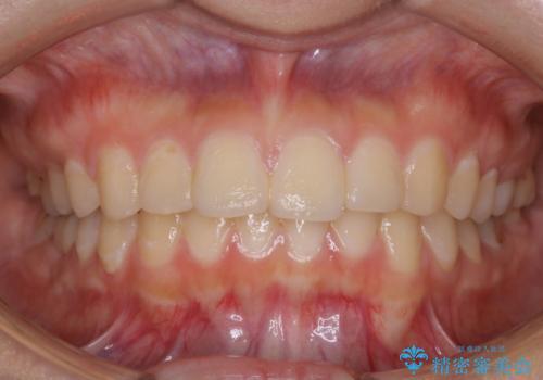 虫歯の治療が終了後にPMTCで全体を綺麗にの治療前
