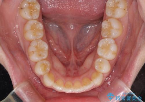 口元をスッキリと ワイヤー装置による抜歯矯正の治療後