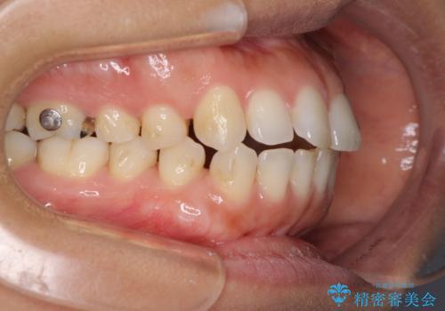 受け口傾向の前歯 すきっ歯の改善の治療中