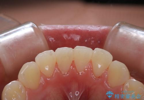 虫歯の治療が終了後にPMTCで全体を綺麗にの治療後