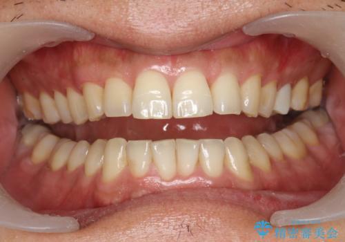 奥歯のセラミックと色を合わせたい オフィスホワイトニングの治療前