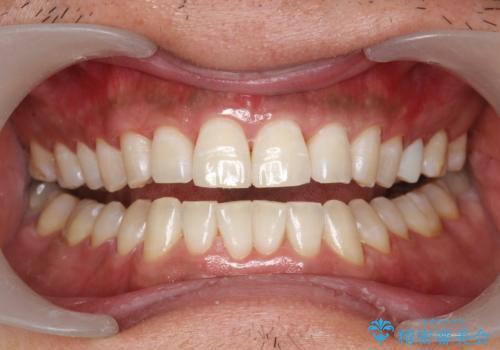 奥歯のセラミックと色を合わせたい オフィスホワイトニングの治療後
