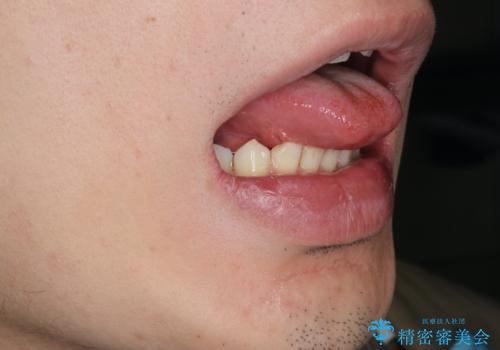 [舌小帯形成術]  滑舌が悪いと言われるの治療後